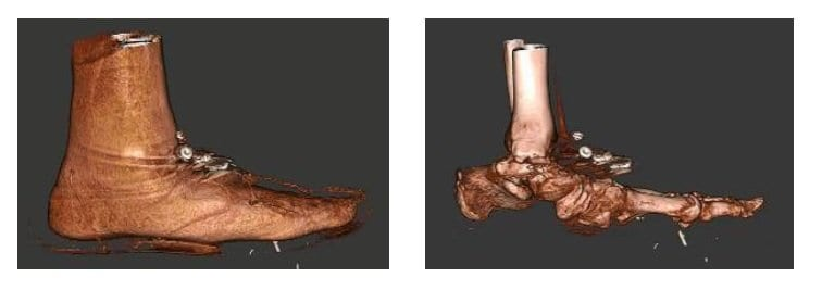 Distinguishing Categories Of Medial Column Ligamentous Fracture
