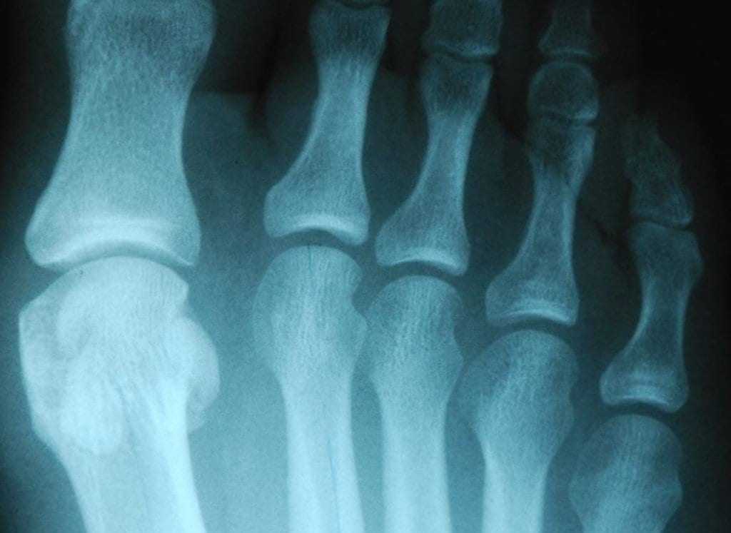World Cup Special Edition: Soccer Player With A Sesamoid Injury