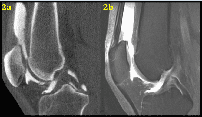 New Findings On The Impact Of Weight On Arthroscopic Osteochondral Talar Reconstruction; MRI Over CT For Detecting Edema