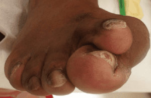 Hallux Valgus Blog Post Image 1