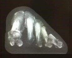 Need Bunion Surgery? A Weight Bearing CT Scan Could Help You Decide