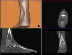 Weight Bearing CT scan. (Top Left) straight subtalar alignment. (Top right) Anteroposterior view shows navicular bone stock. (Bottom left) Sagittal slice shows features of subtalar varus, superior talonavicular arthritis. (Bottom right) straight subtalar alignment. Source: Foot & Ankle Specialist.