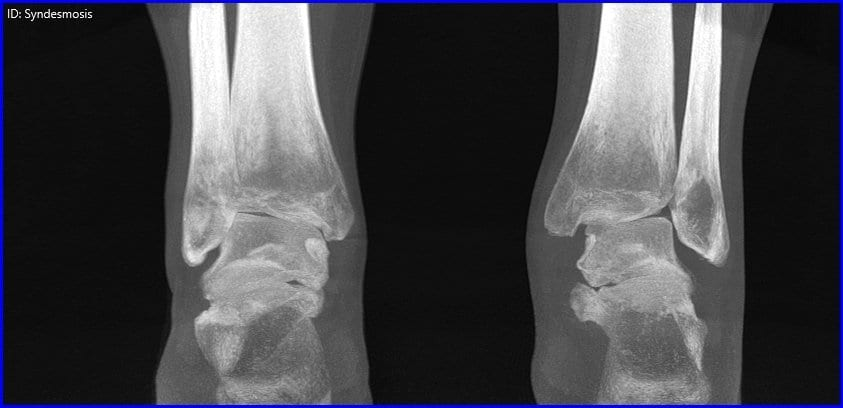 Study Finds Weight Bearing CT Scans Could Provide Accurate Measurements Of Adult Acquired Flatfoot Deformity