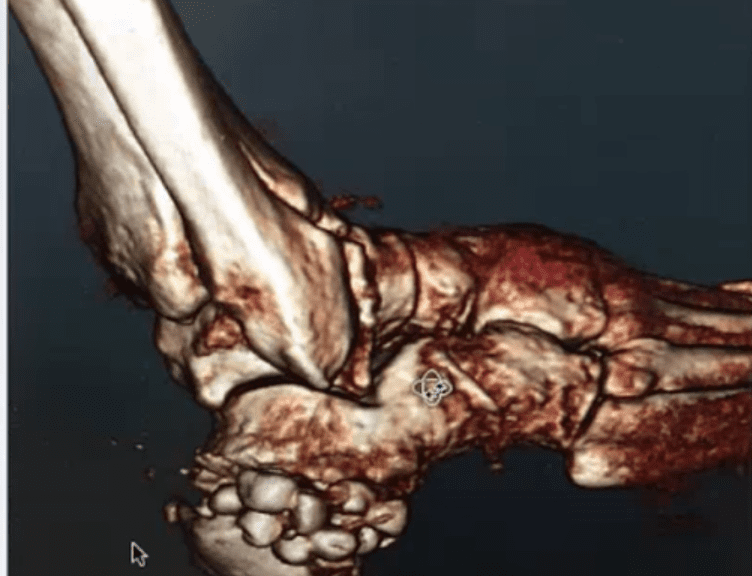 Webinar Summary: Advanced CT Imaging In Foot And Ankle Surgical Considerations