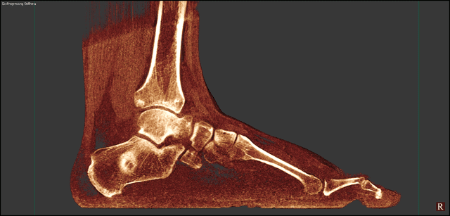 Value Of 3D Reconstructions Of CT Scans For Calcaneal Fracture Assessment