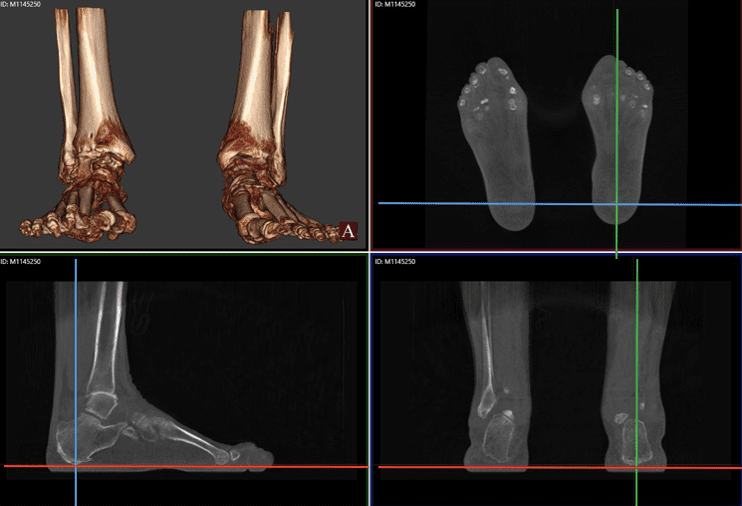 Comparison Of Three Hindfoot Alignment Measurements: Radiographic Hindfoot Moment Arm, Radiographic Hindfoot Alignment Angle, And TALAS