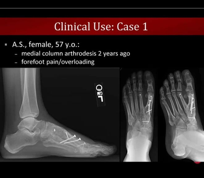 "Literature Review And Case Studies From CurveBeam's ""Weight-Bearing CT Of The Foot And Ankle"" Webinar"