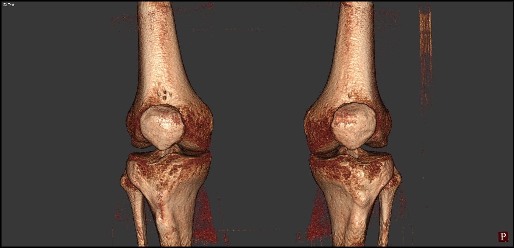 One Step At A Time? Knee Replacements Are Advancing By Leaps And Bounds!
