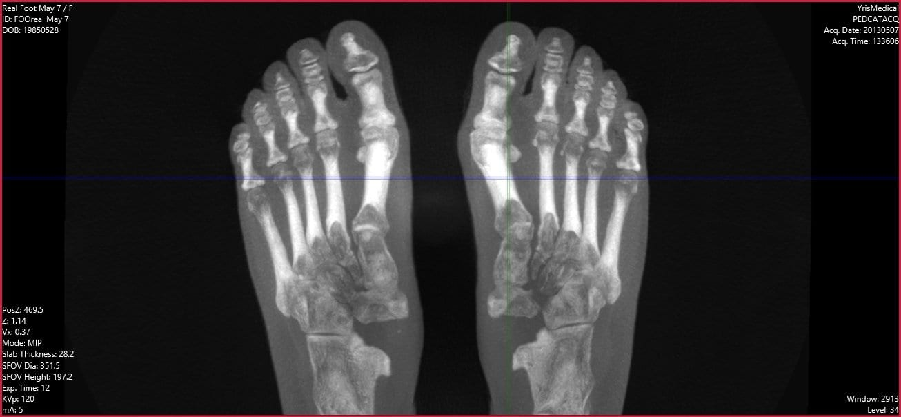 Weight-Bearing CT May Improve Diagnoses In Hallux Valgus Patients