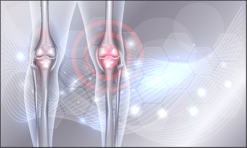 New Algorithm Uses CT Data To Create 3D Map And Better Assess Osteoarthritis
