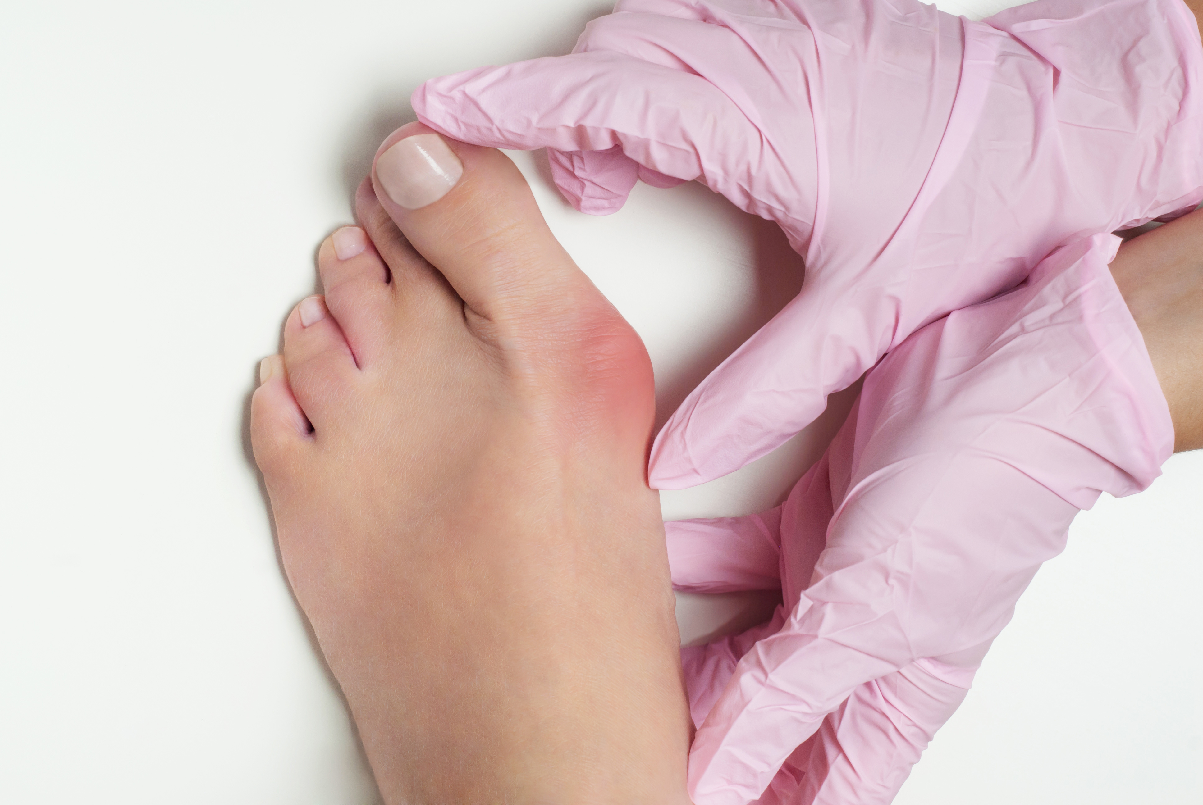 Hallux valgus, bunion in foot on white background