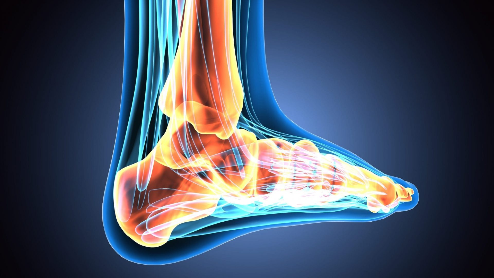 WBCT & MRI Study Sheds Light On Flat Foot Degeneration