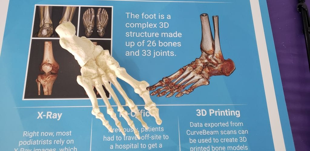 Information about CurveBeam's weight bearing CT technology was on display at the Jamboree.