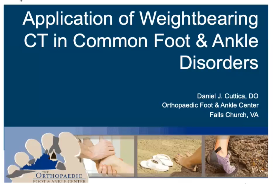 FOOTInnovate Webinar Recap: Application Of Weightbearing CT (WBCT) In Common Foot & Ankle Disorders