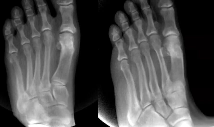 Traditional X-Ray imaging didn't provide an adequate look at the patient's foot due to superimposition of the sesamoids and metatarsals.