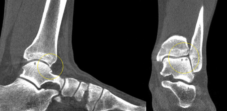 The CurveBeam weight bearing CT scan revealed two osteochondral lesions as well as