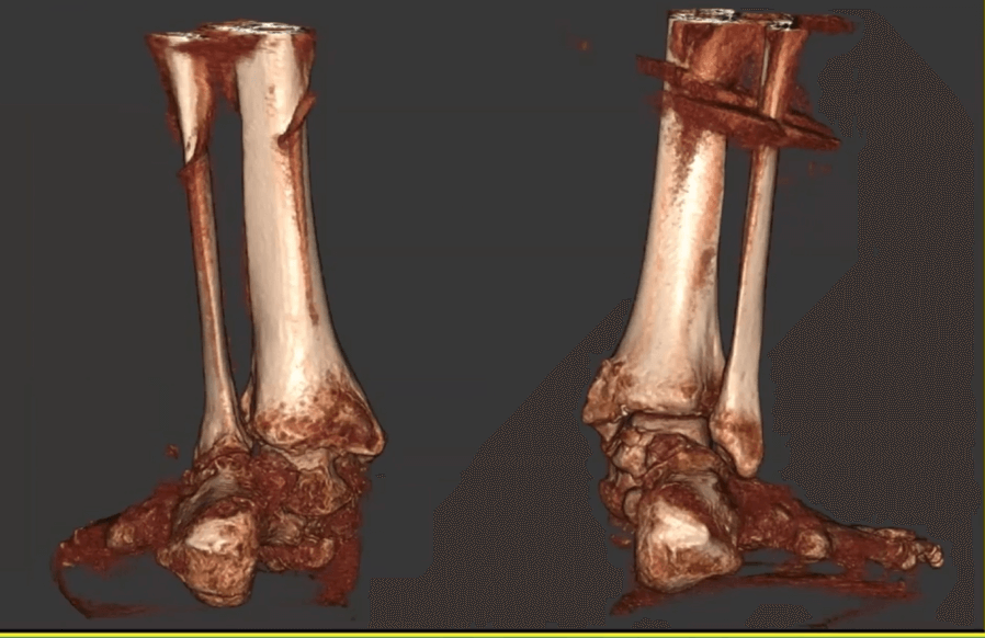 In this bilateral 3D rendering that Dr. Moore presented on FOOTInnovate, the degree of hindfoot deformity is clearly visible.