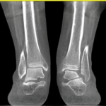 Subtle sub-fibular impingement