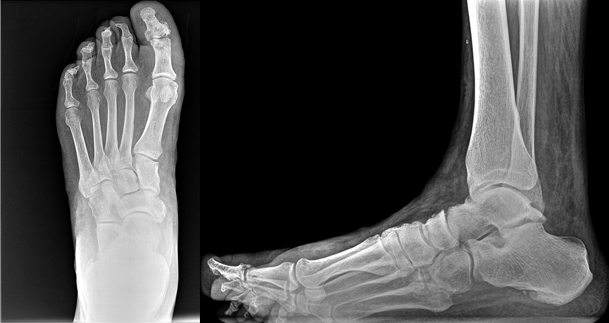 A 38-year-old patient presented with pain in his great toe. Due to bony overlap, 2D radiographs were inconclusive as to the cause of pain.