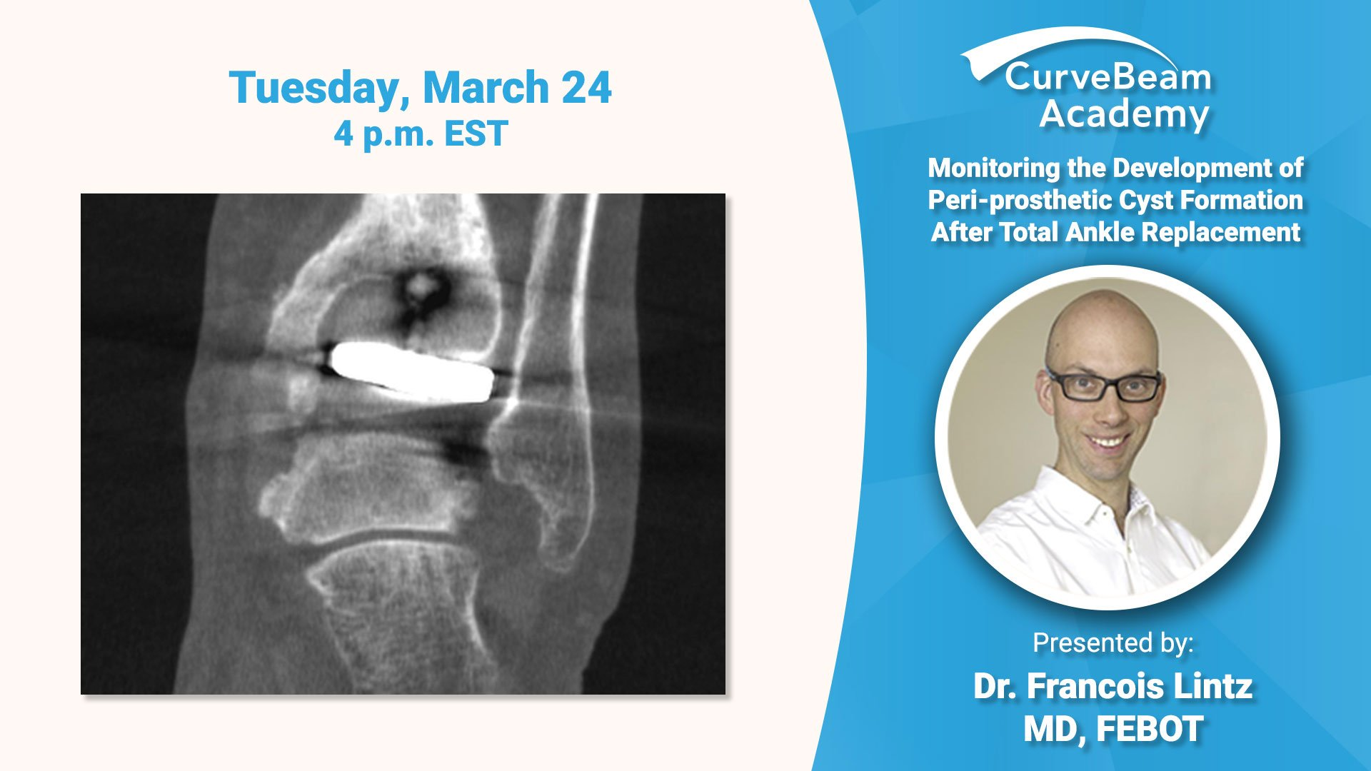 Virtual Lecture: Monitoring The Development Of Cyst Formation After TAR