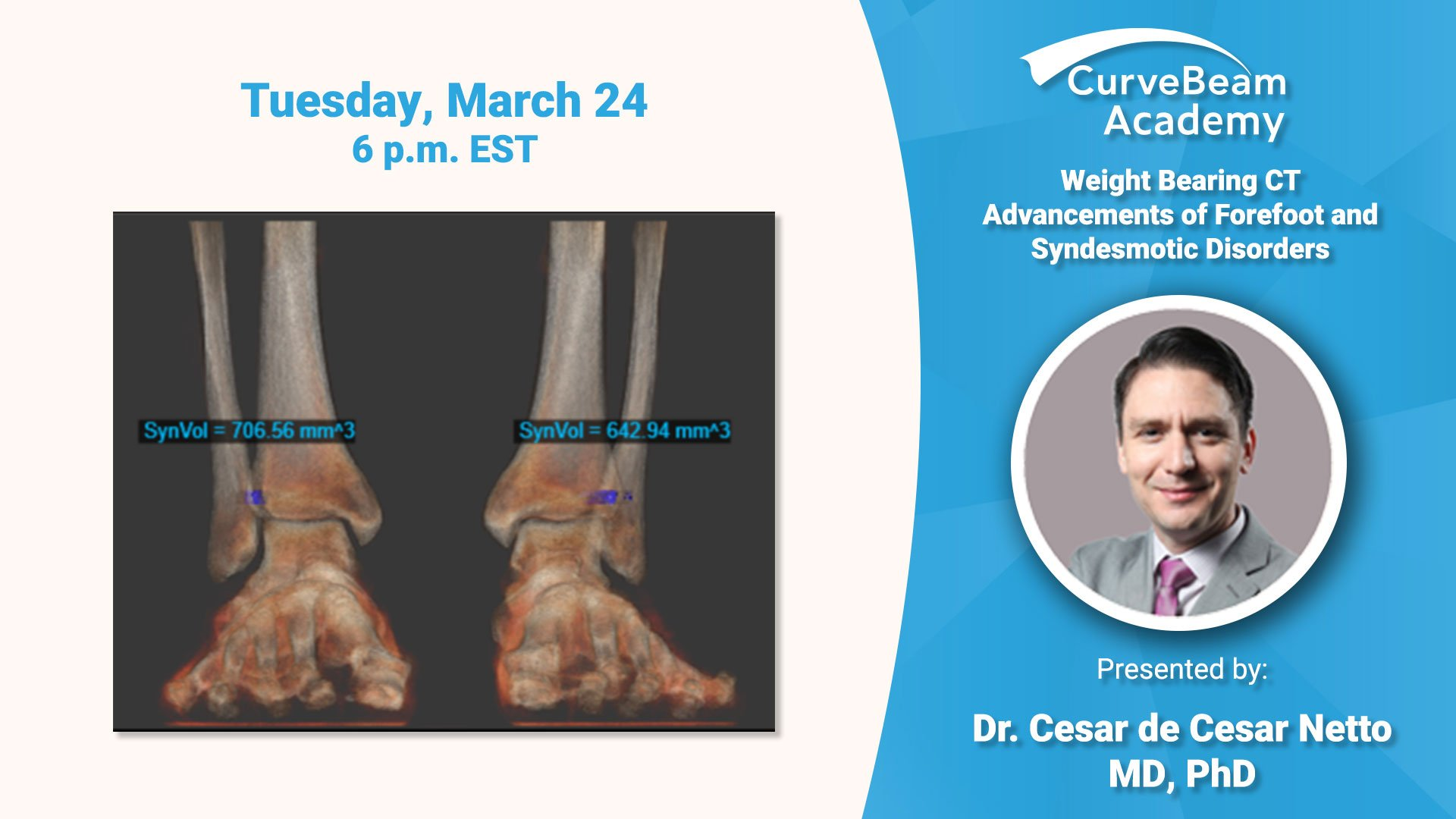 Virtual Lecture: Weight Bearing CT Advancements Of Syndesmotic Disorders