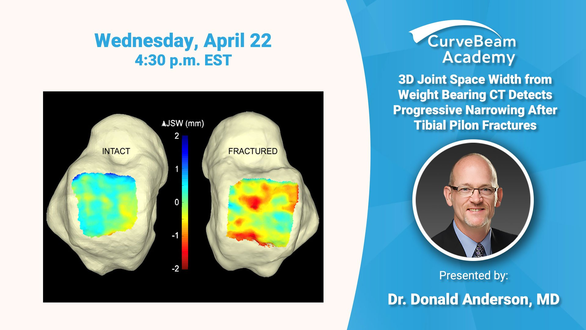 Webinar: 3D Joint Space Width From Weight Bearing CT Detects Progressive Narrowing After Tibial Pilon Fractures