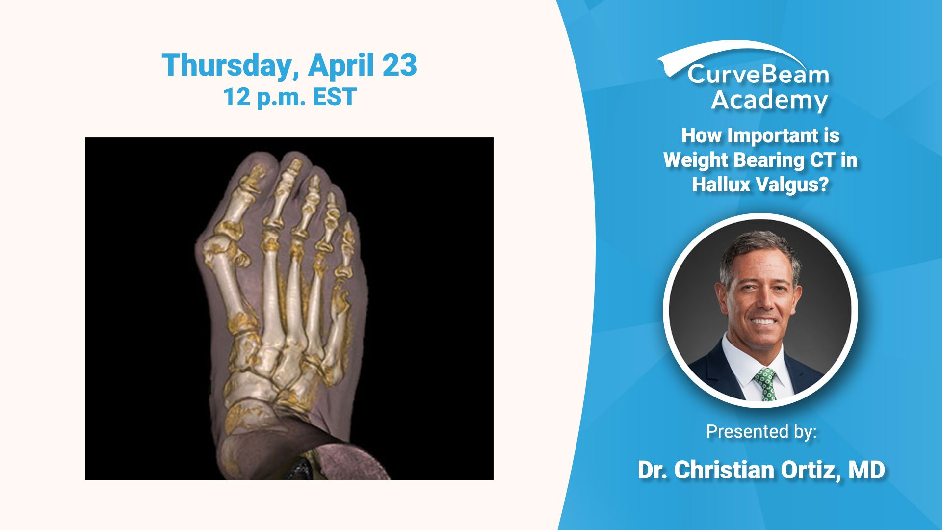 Webinar: How Important Is Weight Bearing CT In Hallux Valgus?