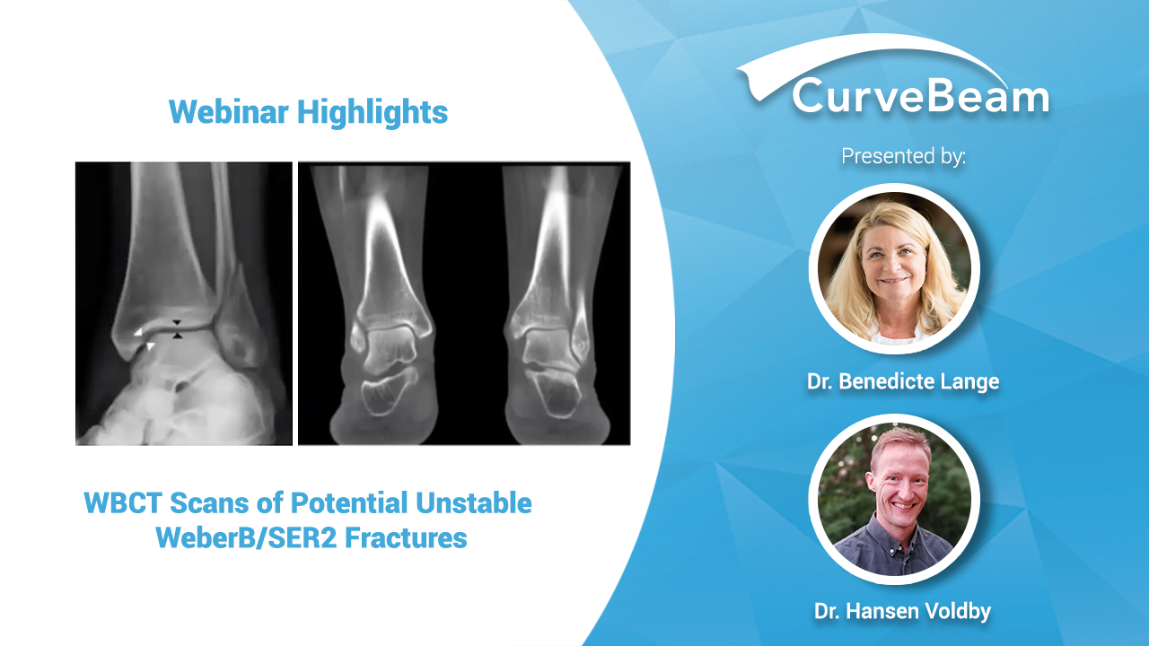Webinar Recap: WBCT Scans Of Potentially Unstable WeberB/SER2 Fractures