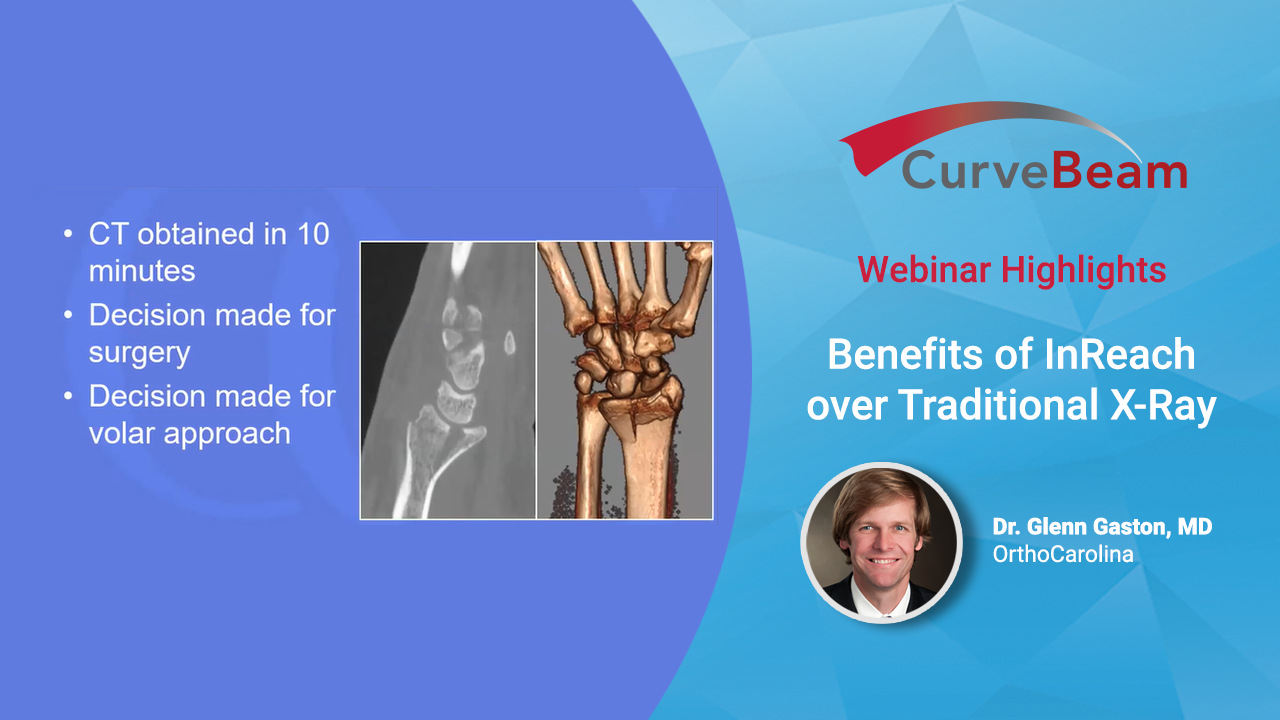 Webinar Highlights: Benefits Of InReach Over Traditional X-Ray By Dr. Glenn Gaston