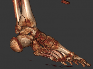 Posterior Tibia Fracture 3D