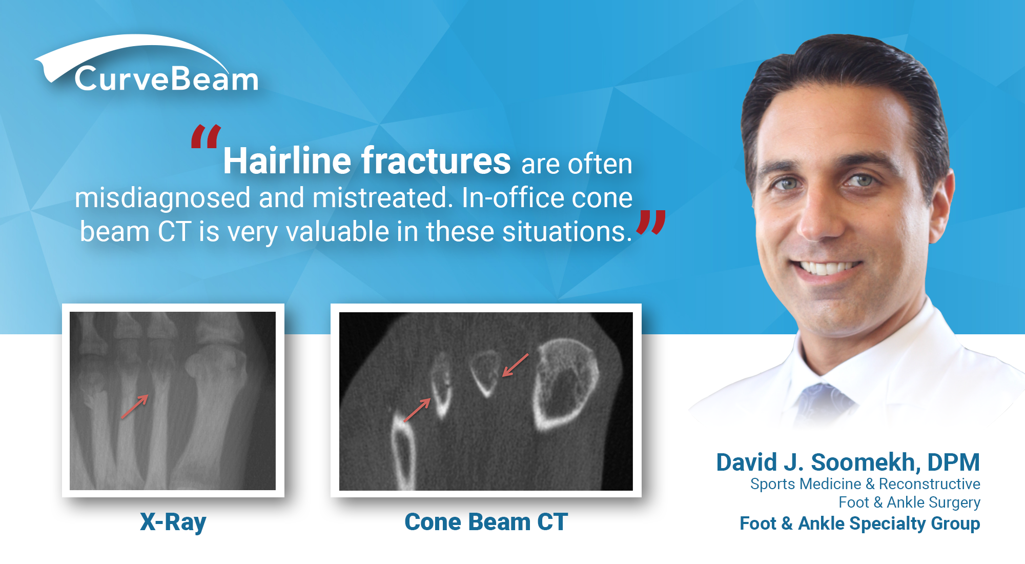 Hairline Fractures: Dx W/ In-Office CT Imaging