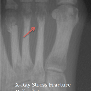 Plain X-Ray Hairline fracture